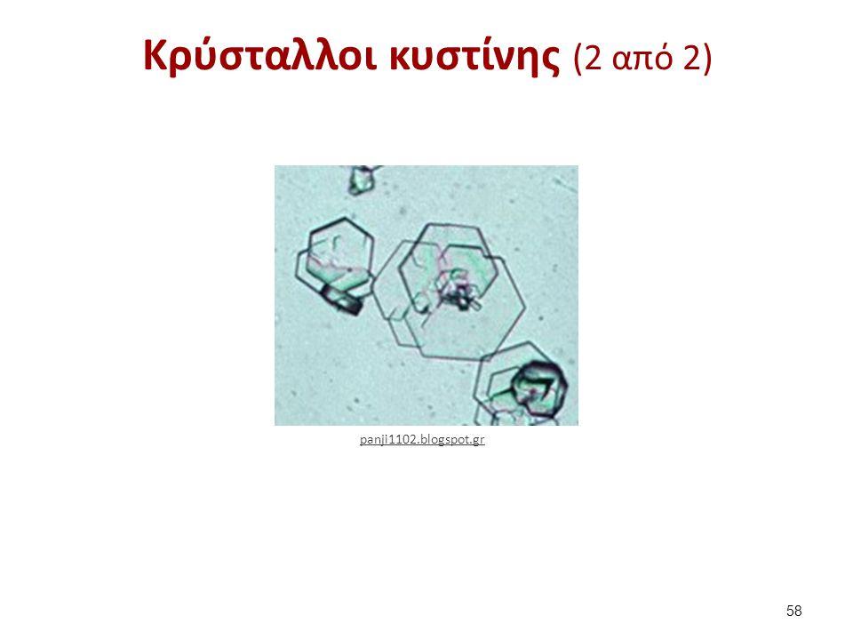 Κρύσταλλοι κυστίνης (2 από 2) 58 panji1102.blogspot.gr
