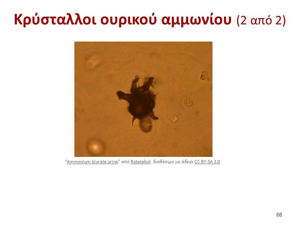 """Κρύσταλλοι ουρικού αμμωνίου (2 από 2) 68 """"Ammonium biurate urine"""" από Rotatebot διαθέσιμο με άδεια CC BY-SA 3.0Ammonium biurate urineRotatebotCC BY-SA"""