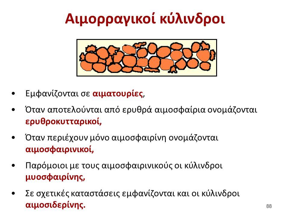 Αιμορραγικοί κύλινδροι Εμφανίζονται σε αιματουρίες, Όταν αποτελούνται από ερυθρά αιμοσφαίρια ονομάζονται ερυθροκυτταρικοί, Όταν περιέχουν μόνο αιμοσφα