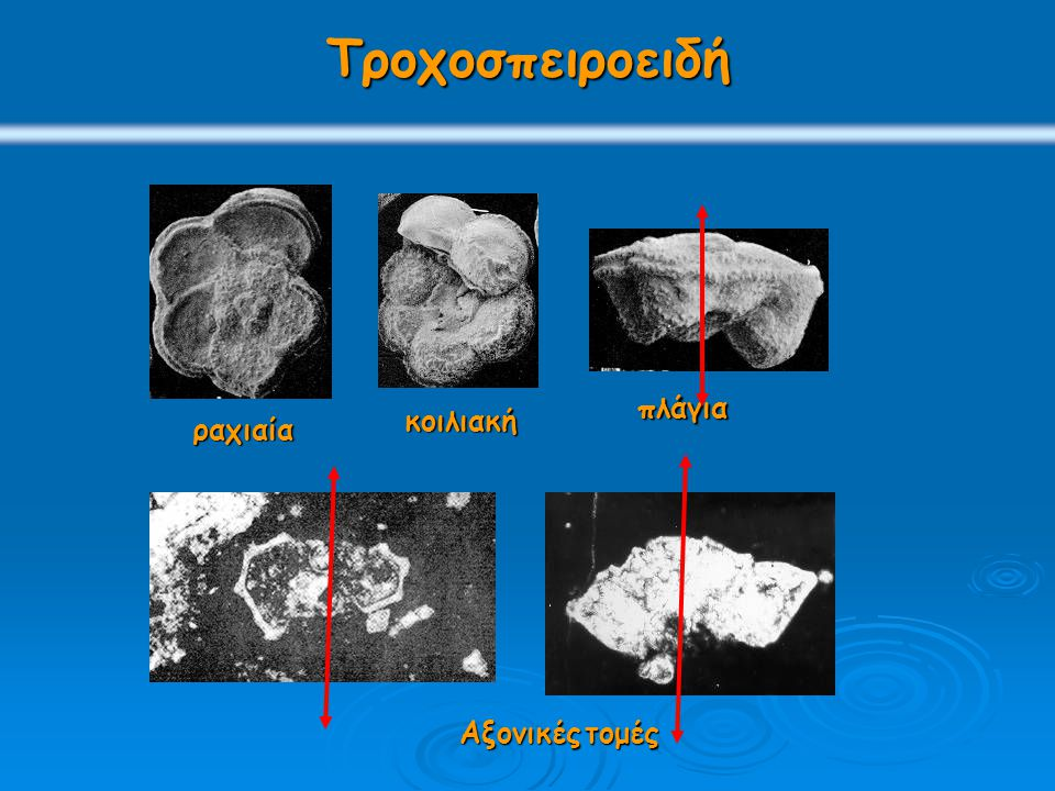 Τροχοσπειροειδή ραχιαία κοιλιακή πλάγια Αξονικέςτομές Αξονικές τομές