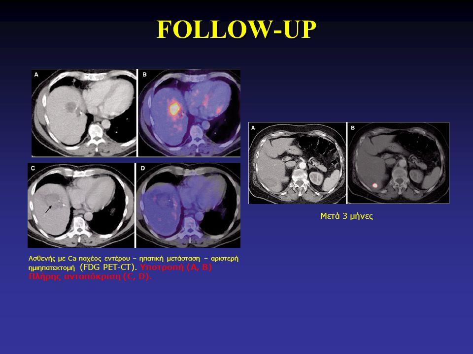 FOLLOW-UP Ασθενής με Ca παχέος εντέρου – ηπατική μετάσταση – αριστερή ημιηπατεκτομή (FDG PET-CT). Υποτροπή (Α, Β) Πλήρης ανταπόκριση (C, D). Μετά 3 μή
