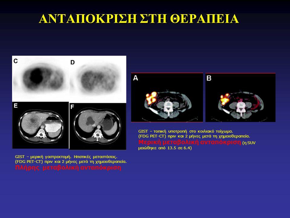 ΑΝΤΑΠΟΚΡΙΣΗ ΣΤΗ ΘΕΡΑΠΕΙΑ GIST – τοπική υποτροπή στο κοιλιακό τοίχωμα. (FDG PET-CT) πριν και 2 μήνες μετά τη χημειοθεραπεία. Μερική μεταβολική ανταπόκρ