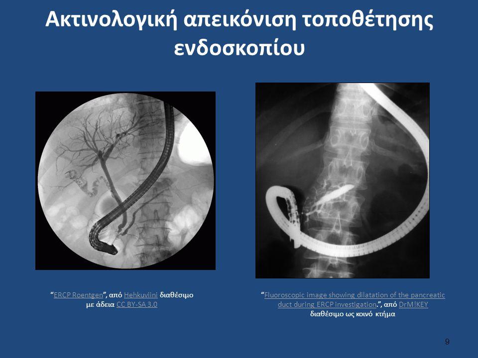 """Ακτινολογική απεικόνιση τοποθέτησης ενδοσκοπίου 9 """"ERCP Roentgen"""", από Hehkuviini διαθέσιμο με άδεια CC BY-SA 3.0ERCP RoentgenHehkuviiniCC BY-SA 3.0 """""""
