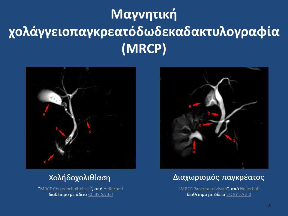 """Μαγνητική χολάγγειοπαγκρεατόδωδεκαδακτυλογραφία (MRCP) 15 Χολήδοχολιθίαση Διαχωρισμός παγκρέατος """"MRCP Choledocholithiasis"""", από Hellerhoff διαθέσιμο"""