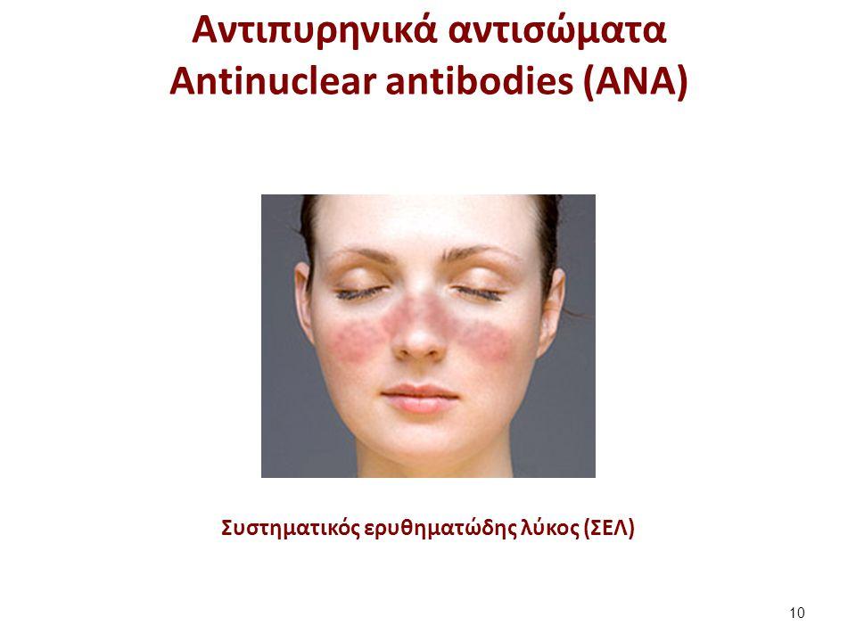 Συστηματικός ερυθηματώδης λύκος (ΣΕΛ) Αντιπυρηνικά αντισώματα Antinuclear antibodies (ANA) 10