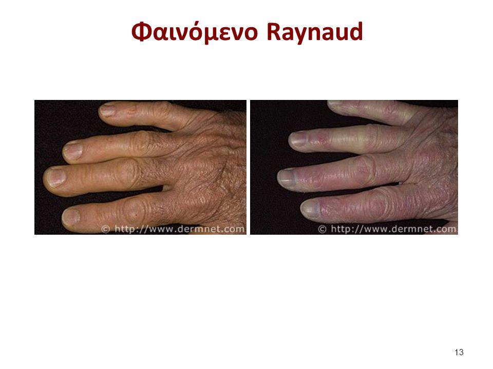 Φαινόμενο Raynaud 13