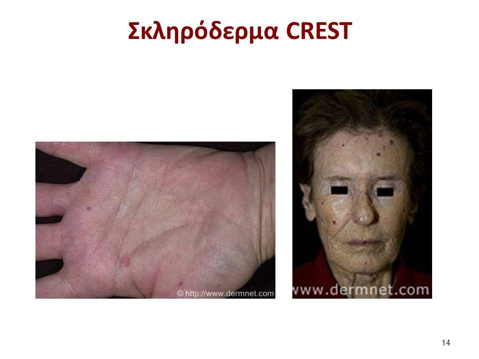 Σκληρόδερμα CREST 14