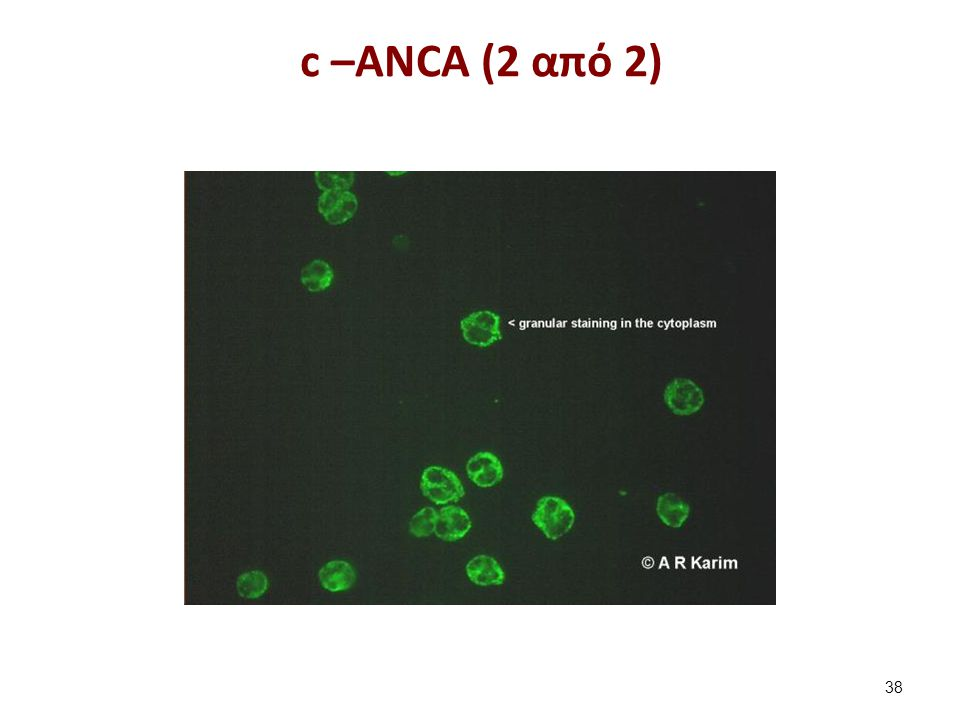 c –ANCA (2 από 2) 38