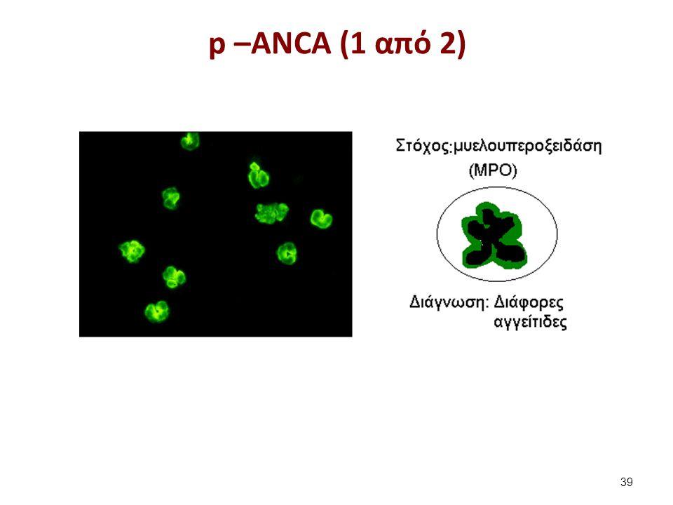 p –ANCA (1 από 2) 39