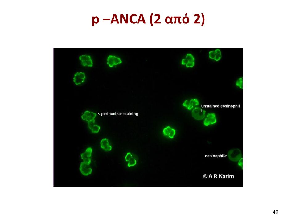 p –ANCA (2 από 2) 40