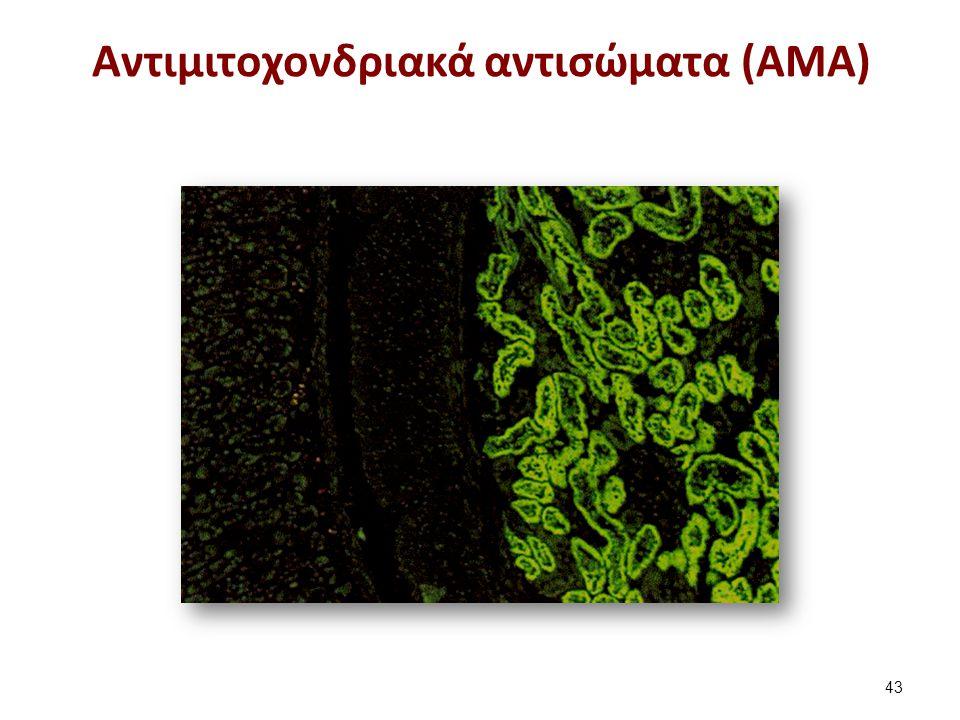 Αντιμιτοχονδριακά αντισώματα (ΑΜΑ) 43