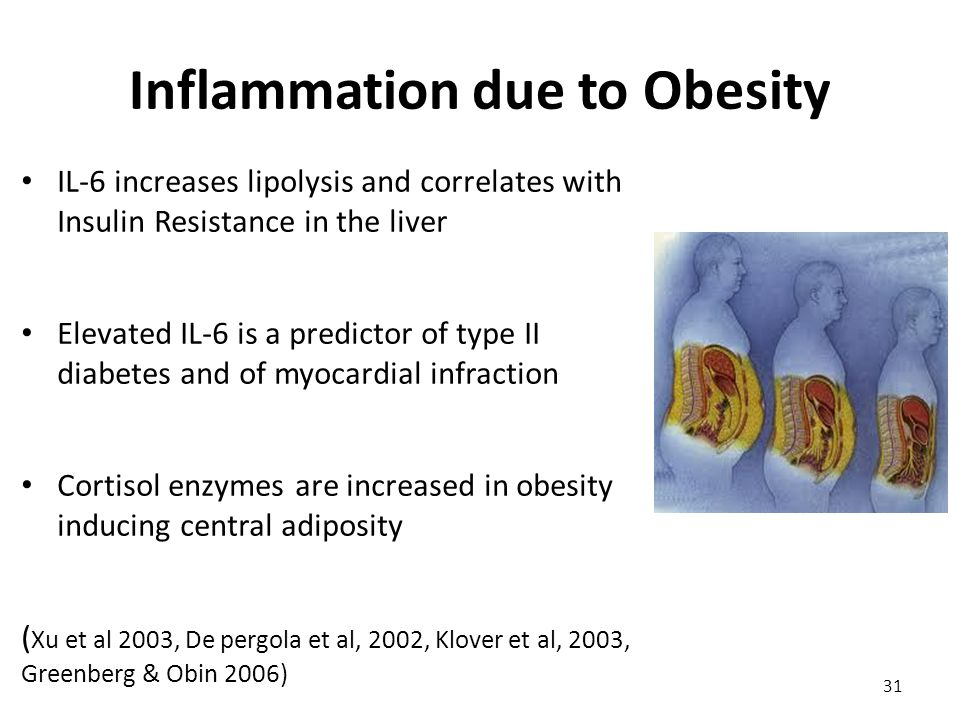 Inflammation due to Obesity IL-6 increases lipolysis and correlates with Insulin Resistance in the liver Elevated IL-6 is a predictor of type II diabetes and of myocardial infraction Cortisol enzymes are increased in obesity inducing central adiposity ( Xu et al 2003, De pergola et al, 2002, Klover et al, 2003, Greenberg & Obin 2006) 31