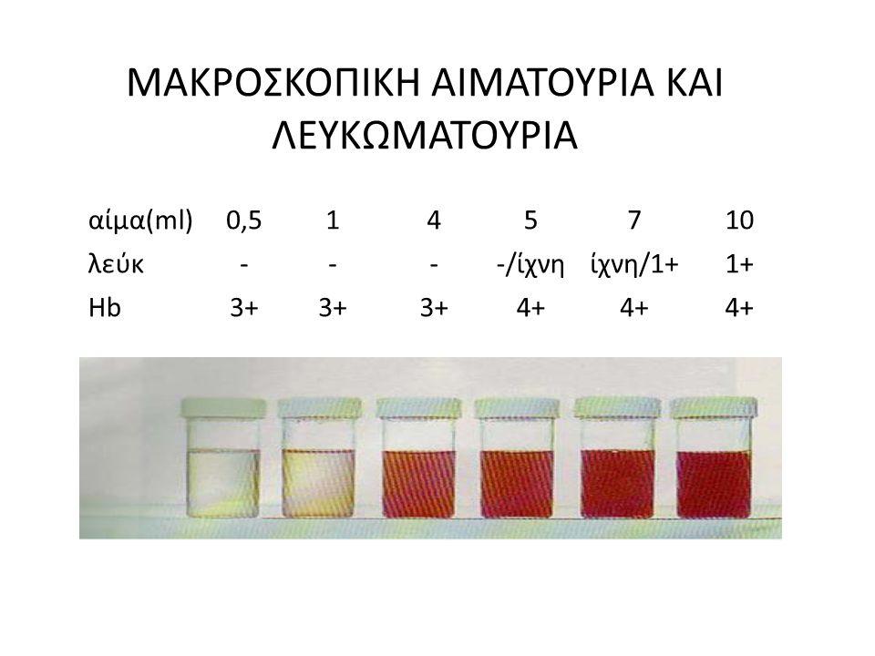 ΜΑΚΡΟΣΚΟΠΙΚΗ ΑΙΜΑΤΟΥΡΙΑ ΚΑΙ ΛΕΥΚΩΜΑΤΟΥΡΙΑ αίμα(ml)0,5145710 λεύκ----/ίχνηίχνη/1+1+ ΗbΗb3+ 4+