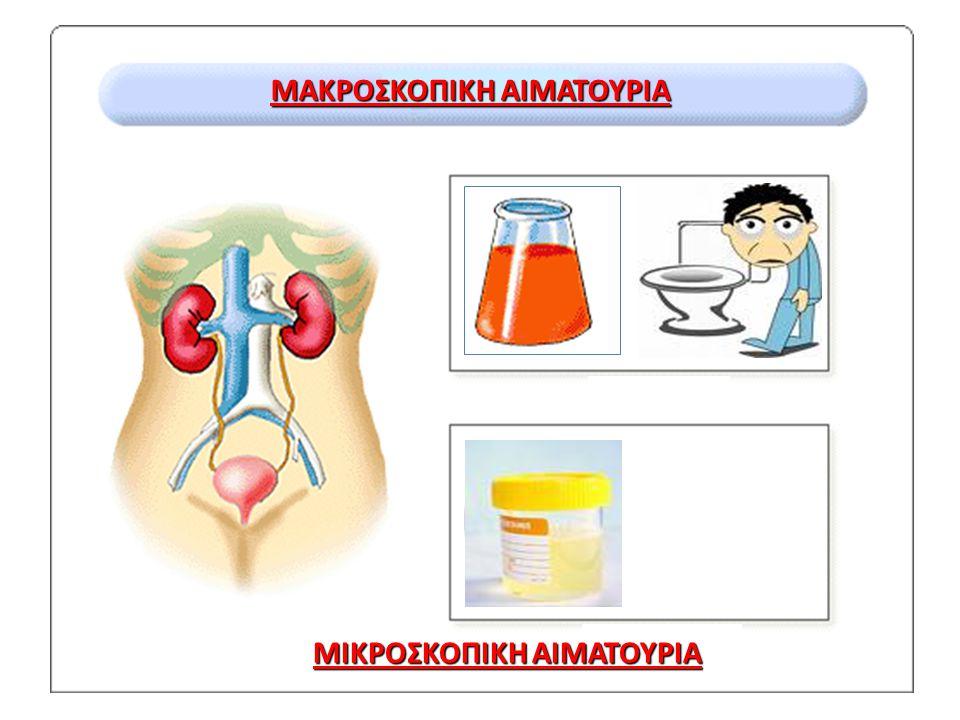 ΚΟΚΚΙΝΑ ΟΥΡΑ Φυγοκέντρηση Κόκκινο ίζημα Αιματουρία Κόκκινο υπερκείμενο Dipstick αίμης Αρνητικό Θετικό Παντζάρια Φεναζοπυριδίνη Πορφυρία Μυοσφαιρίνη Αιμοσφαιρίνη Χρώμα πλάσματος Διαυγές ΜυοσφαιρινουρίαΑιμοσφαιρινουρία Κόκκινο