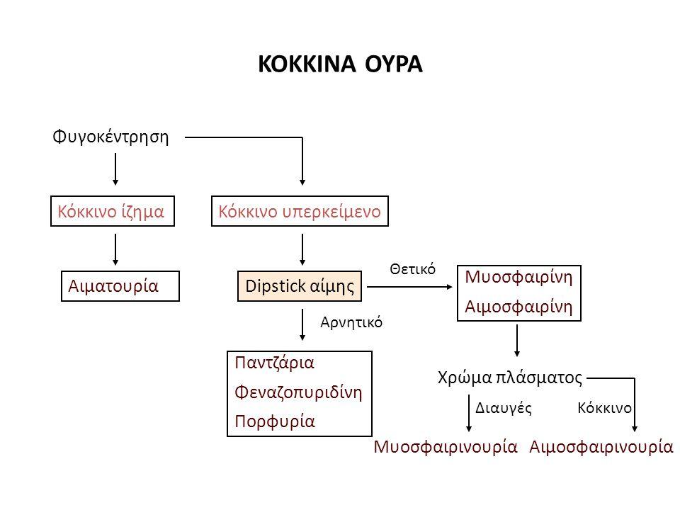 αιμοσφαιρινουρίαμυοσφαιρινουρία Χρώμα ούρωνΚόκκινο ή κοκκινο- καφέ Αιμοσφαιρίνη ούρων ++ Χρώμα πλάσματοςΡοζέκαθαρό Απτοσφαιρίνες ορού Αυξημένεςφυσιολογικές CPK ορούφυσιολογικέςΑυξημένες