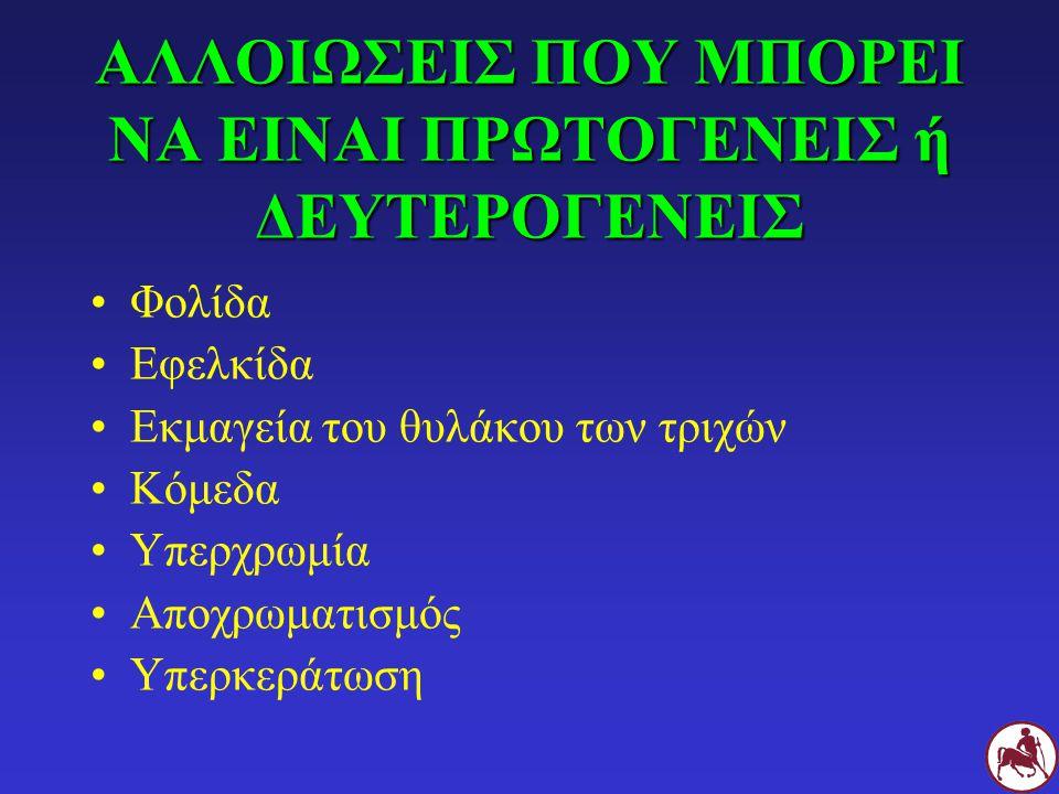 ΥΠΕΡΚΕΡΑΤΩΣΗ