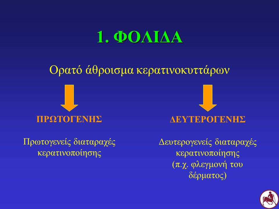 Σ Εκμαγεία του θυλάκου των τριχών (βέλη), φολίδες και αλωπεκία σε Σ με διαταραχή της κερατινοποίησης