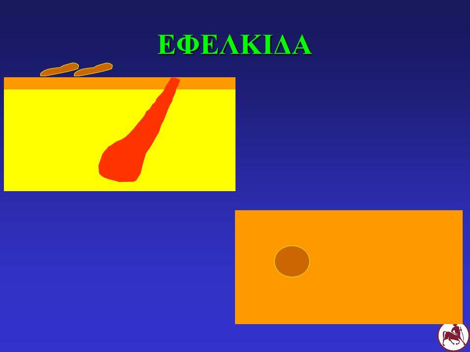 Σ Κόμεδα, υποτρίχωση, ερύθημα και βλατίδες στην κάτω επιφάνεια του θώρακα Σ με γενικευμένη δεμοδήκωση των νεαρών