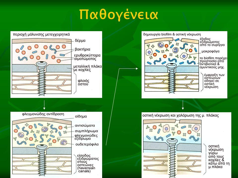 Οστεομοσχεύματα  Αυτογενή σπογγώδη μεσεγχυματικά κύτταρα + χημικούς μεταβιβαστές συμβάλλουν σημαντικά στην εξέλιξη της πώρωσης συμβάλλουν σημαντικά στην εξέλιξη της πώρωσης - χρήση κατά την φάση της νεαροποίησης ή της - χρήση κατά την φάση της νεαροποίησης ή της αναθεώρησης της οστεοσύνθεσης αναθεώρησης της οστεοσύνθεσης - 7 με 14 ημέρες μετά (η αγγείωση των - 7 με 14 ημέρες μετά (η αγγείωση των ιστών είναι υπό αμφισβήτηση ιστών είναι υπό αμφισβήτηση)
