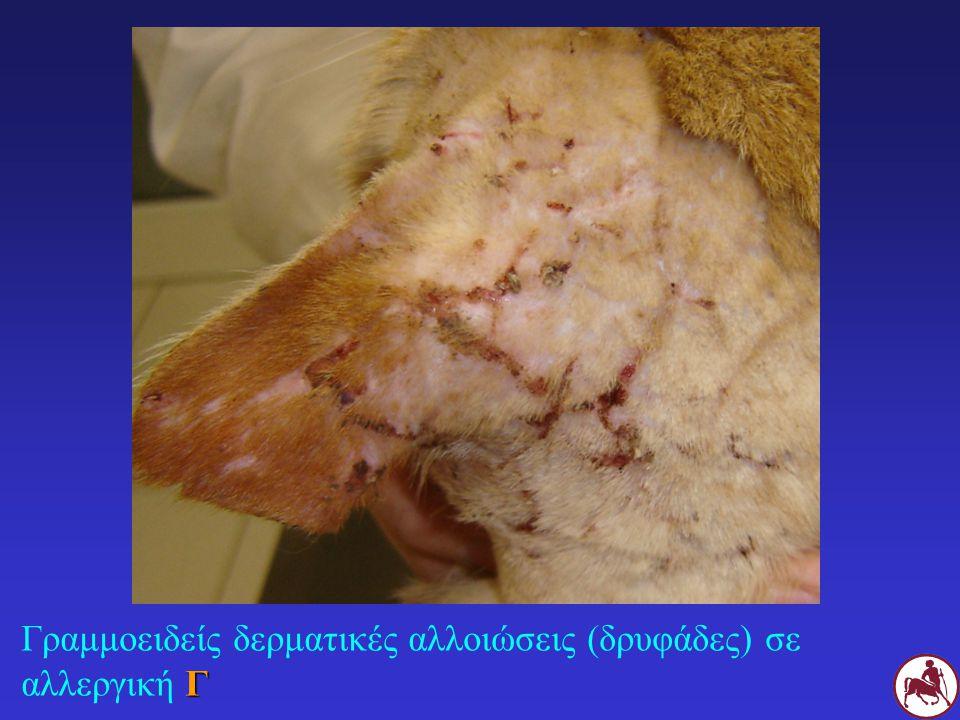 Γ Γραμμοειδείς δερματικές αλλοιώσεις (δρυφάδες) σε αλλεργική Γ