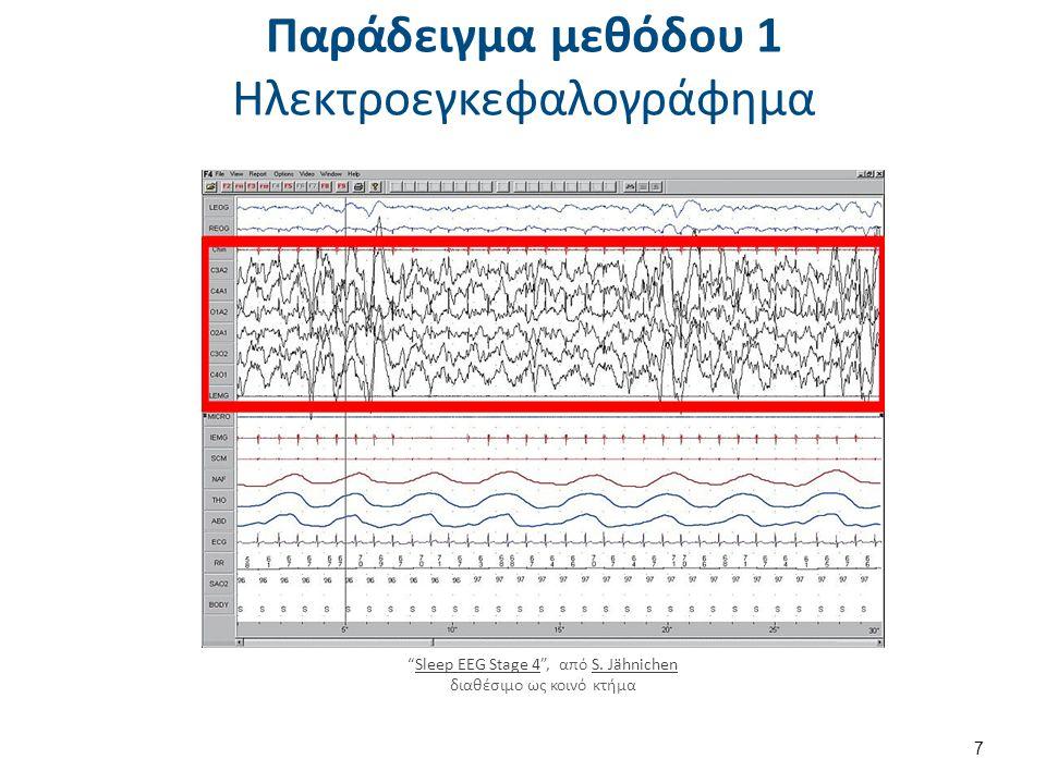 """Παράδειγμα μεθόδου 1 Ηλεκτροεγκεφαλογράφημα 7 """"Sleep EEG Stage 4"""", από S. Jähnichen διαθέσιμο ως κοινό κτήμαSleep EEG Stage 4S. Jähnichen"""