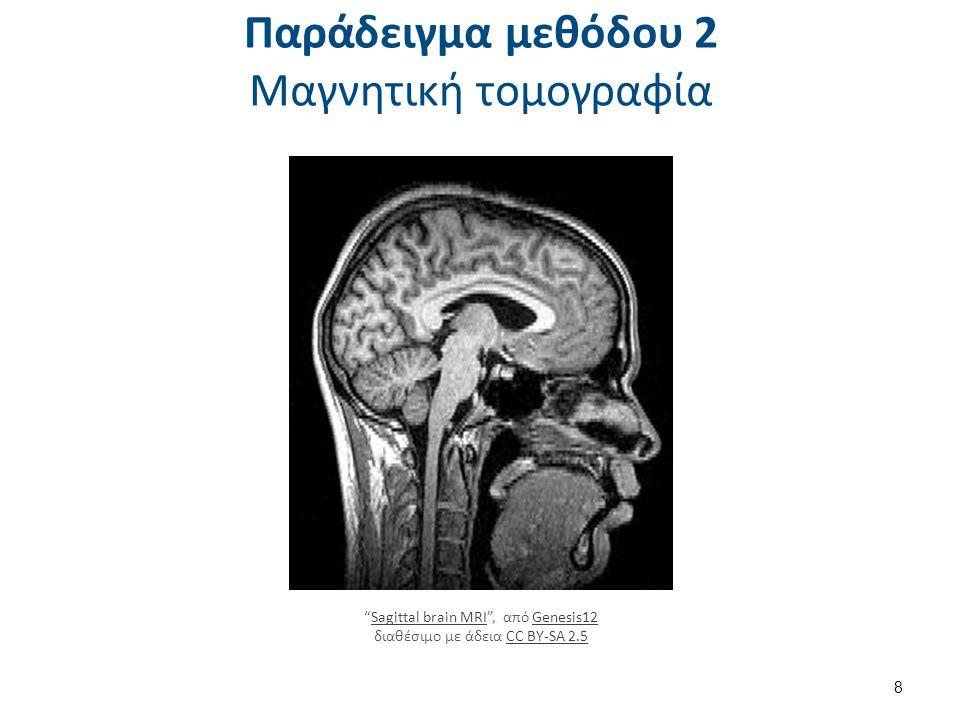 """Παράδειγμα μεθόδου 2 Μαγνητική τομογραφία 8 """"Sagittal brain MRI"""", από Genesis12 διαθέσιμο με άδεια CC BY-SA 2.5Sagittal brain MRIGenesis12CC BY-SA 2.5"""