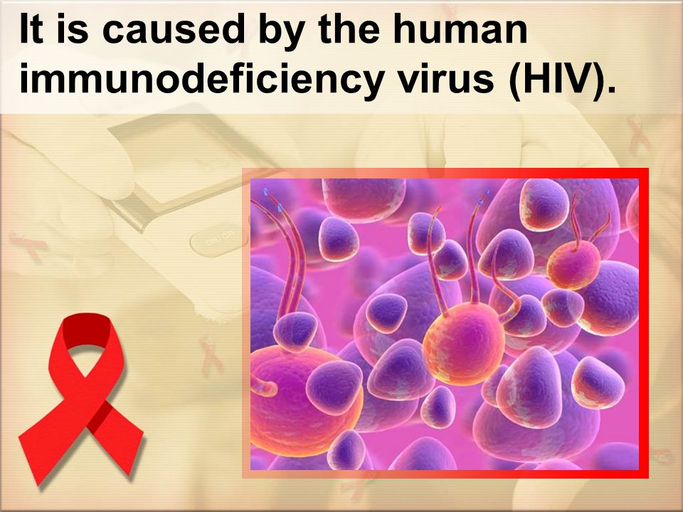 It is caused by the human immunodeficiency virus (HIV).