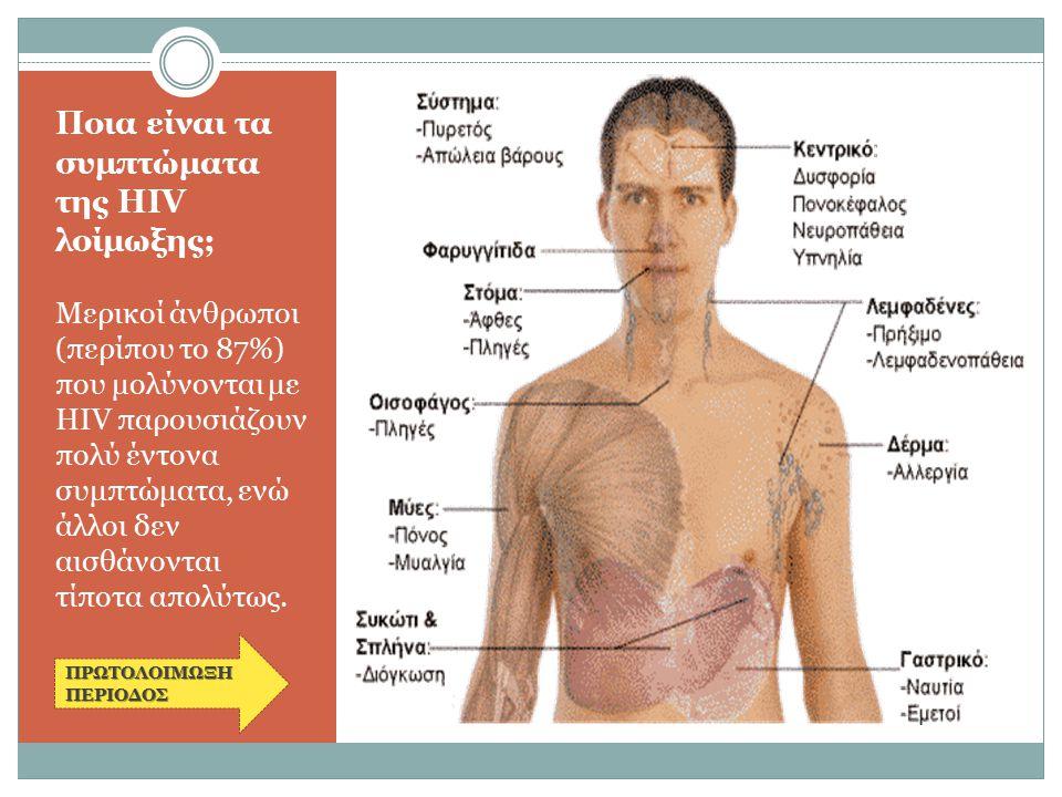 Ποια είναι τα συμπτώματα της HIV λοίμωξης; Μερικοί άνθρωποι (περίπου το 87%) που μολύνονται με HIV παρουσιάζουν πολύ έντονα συμπτώματα, ενώ άλλοι δεν