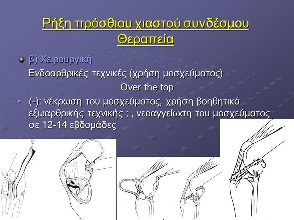 Ρήξη πρόσθιου χιαστού συνδέσμου Θεραπεία β) Χειρουργική Ενδοαρθρικές τεχνικές (χρήση μοσχεύματος) Ενδοαρθρικές τεχνικές (χρήση μοσχεύματος) Over the t