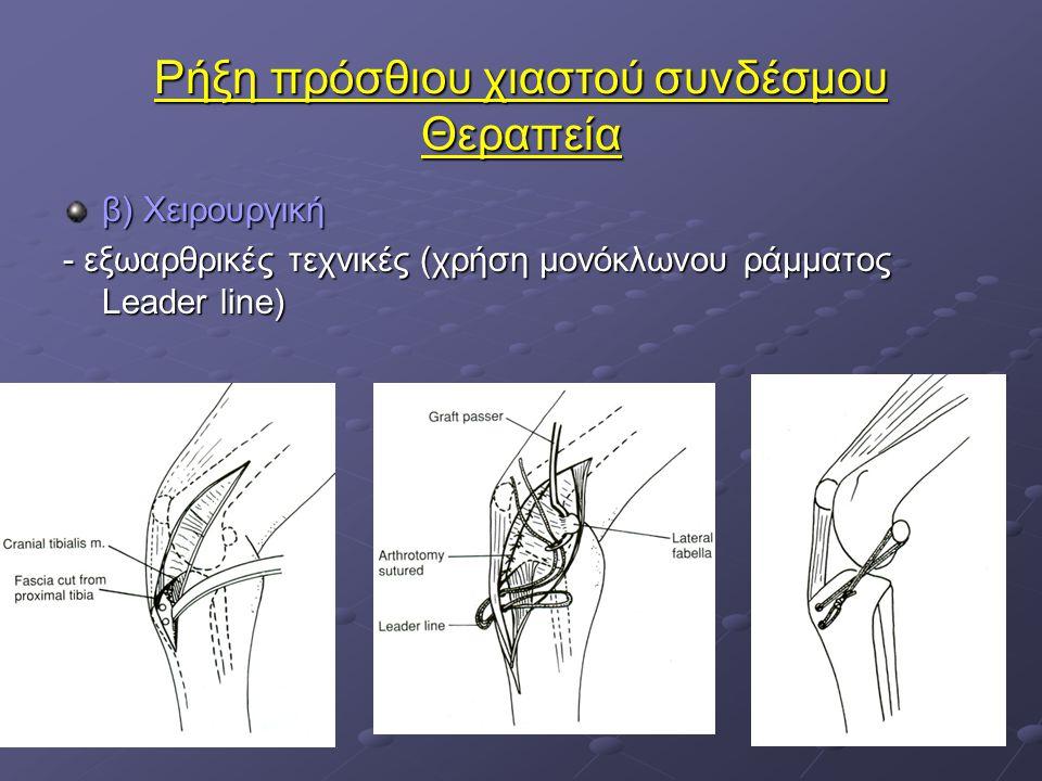 Ρήξη πρόσθιου χιαστού συνδέσμου Θεραπεία β) Χειρουργική - εξωαρθρικές τεχνικές (χρήση μονόκλωνου ράμματος Leader line)