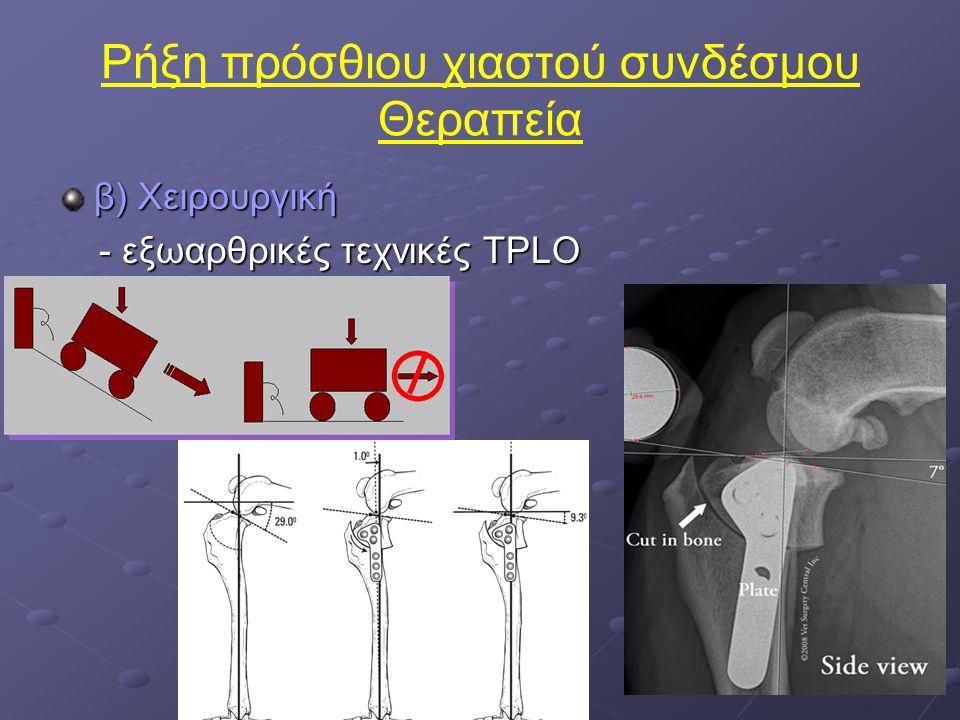 Ρήξη πρόσθιου χιαστού συνδέσμου Θεραπεία β) Χειρουργική - εξωαρθρικές τεχνικές TPLO - εξωαρθρικές τεχνικές TPLO