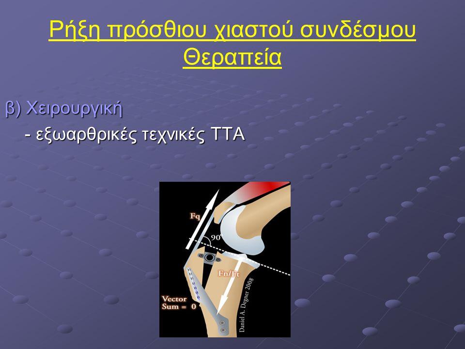 Ρήξη πρόσθιου χιαστού συνδέσμου Θεραπεία β) Χειρουργική - εξωαρθρικές τεχνικές TTA - εξωαρθρικές τεχνικές TTA