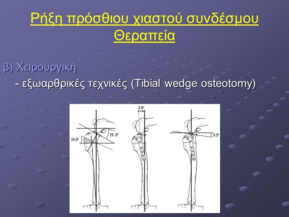 Ρήξη πρόσθιου χιαστού συνδέσμου Θεραπεία β) Χειρουργική - εξωαρθρικές τεχνικές (Tibial wedge osteotomy) - εξωαρθρικές τεχνικές (Tibial wedge osteotomy