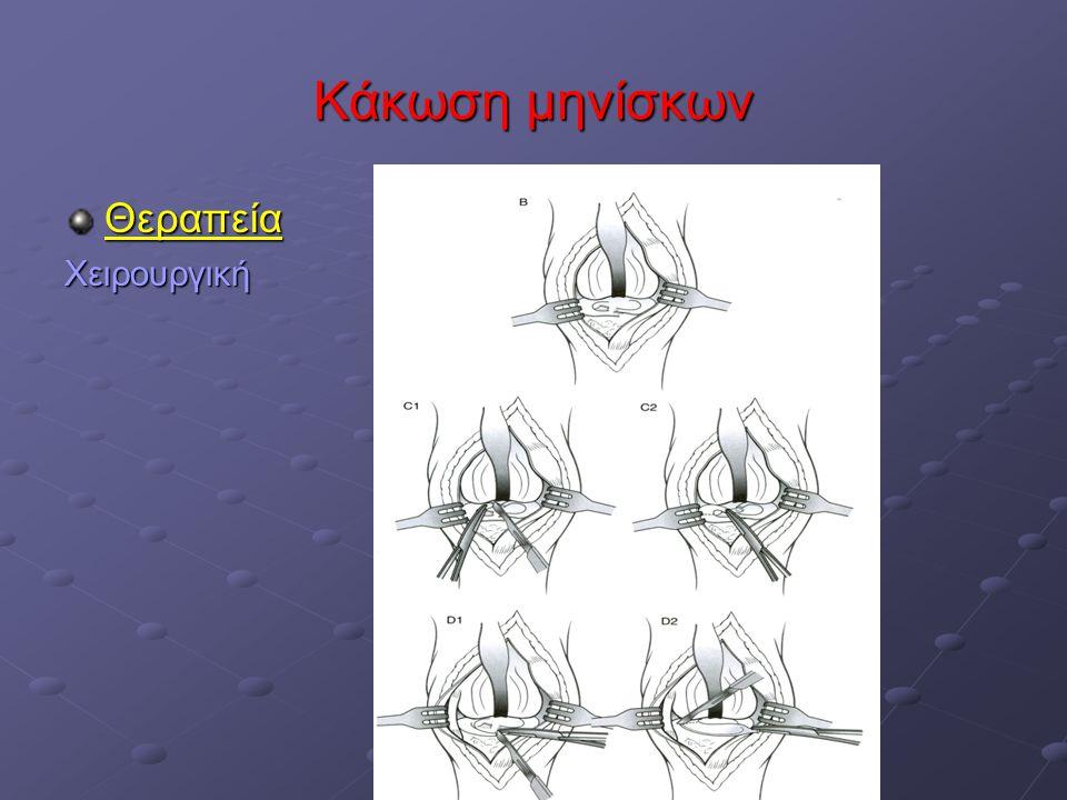 Κάκωση μηνίσκων ΘεραπείαΧειρουργική