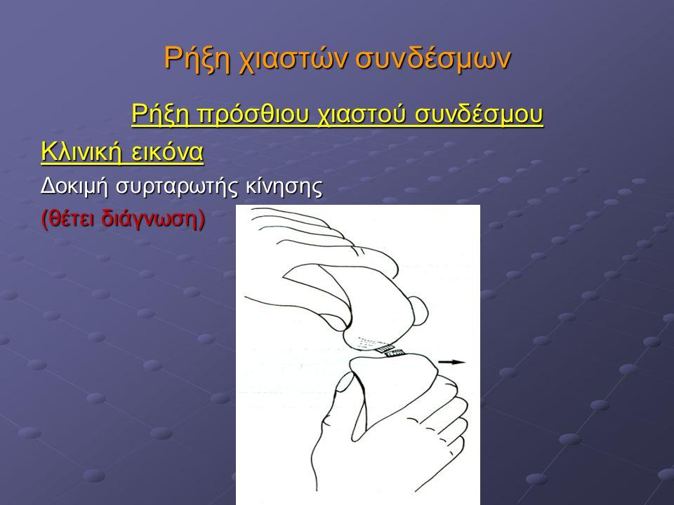 Ρήξη χιαστών συνδέσμων Ρήξη πρόσθιου χιαστού συνδέσμου Κλινική εικόνα Κλινική εικόνα Δοκιμή με κάμψη και έκταση του ταρσού (χρήσιμη σε μεγαλόσωμα ζώα) Δοκιμή με κάμψη και έκταση του ταρσού (χρήσιμη σε μεγαλόσωμα ζώα)