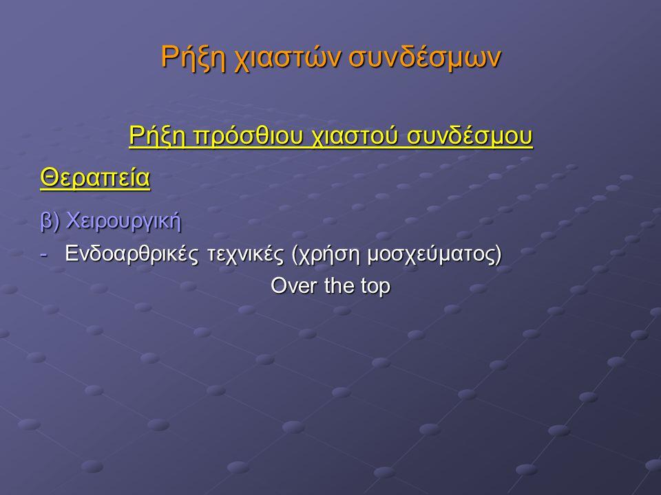 Ρήξη πρόσθιου χιαστού συνδέσμου Θεραπεία β) Χειρουργική Ενδοαρθρικές τεχνικές (χρήση μοσχεύματος) Ενδοαρθρικές τεχνικές (χρήση μοσχεύματος) Over the top (-): νέκρωση του μοσχεύματος, χρήση βοηθητικά εξωαρθρικής τεχνικής ;, νεοαγγείωση του μοσχεύματος σε 12-14 εβδομάδες(-): νέκρωση του μοσχεύματος, χρήση βοηθητικά εξωαρθρικής τεχνικής ;, νεοαγγείωση του μοσχεύματος σε 12-14 εβδομάδες