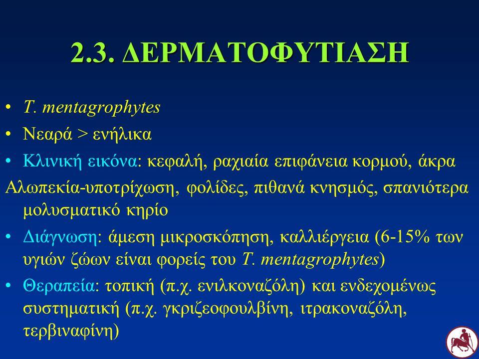 2.3. ΔΕΡΜΑΤΟΦΥΤΙΑΣΗ T. mentagrophytes Νεαρά > ενήλικα Κλινική εικόνα: κεφαλή, ραχιαία επιφάνεια κορμού, άκρα Αλωπεκία-υποτρίχωση, φολίδες, πιθανά κνησ