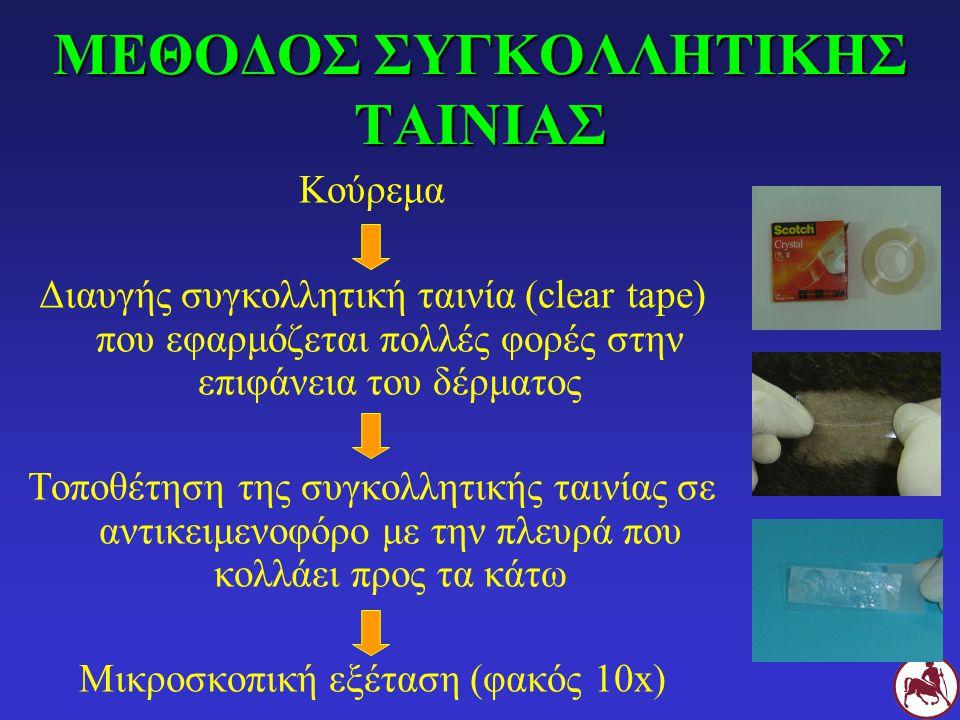 ΜΕΘΟΔΟΣ ΣΥΓΚΟΛΛΗΤΙΚΗΣ ΤΑΙΝΙΑΣ Κούρεμα Διαυγής συγκολλητική ταινία (clear tape) που εφαρμόζεται πολλές φορές στην επιφάνεια του δέρματος Τοποθέτηση της