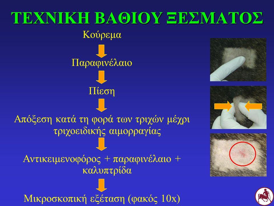 ΤΕΧΝΙΚΗ ΜΙΚΡΟΣΚΟΠΙΚΗΣ ΕΞΕΤΑΣΗΣ ΠΥΩΔΟΥΣ ΕΞΙΔΡΩΜΑΤΟΣ Κούρεμα Πίεση Συλλογή πυώδους εξιδρώματος με νυστέρι Αντικειμενοφόρος + παραφινέλαιο + καλυπτρίδα Μικροσκοπική εξέταση (φακός 10x)