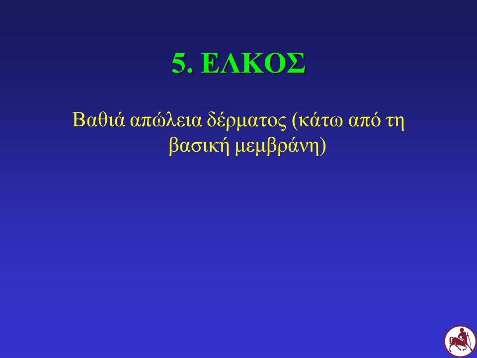 5. ΕΛΚΟΣ Βαθιά απώλεια δέρματος (κάτω από τη βασική μεμβράνη)