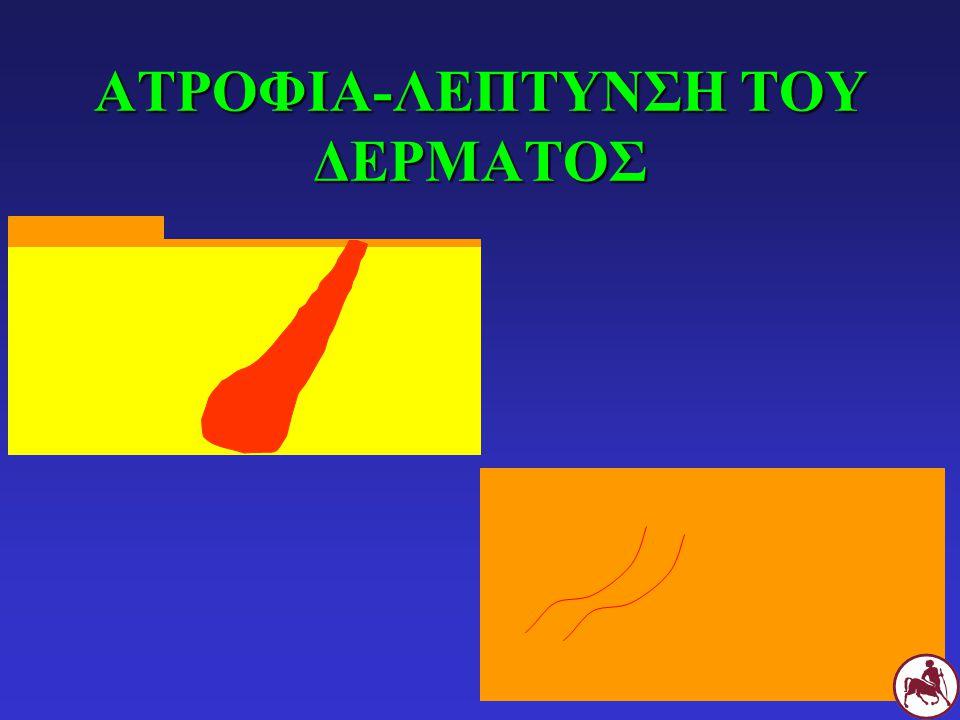 ΑΤΡΟΦΙΑ-ΛΕΠΤΥΝΣΗ ΤΟΥ ΔΕΡΜΑΤΟΣ