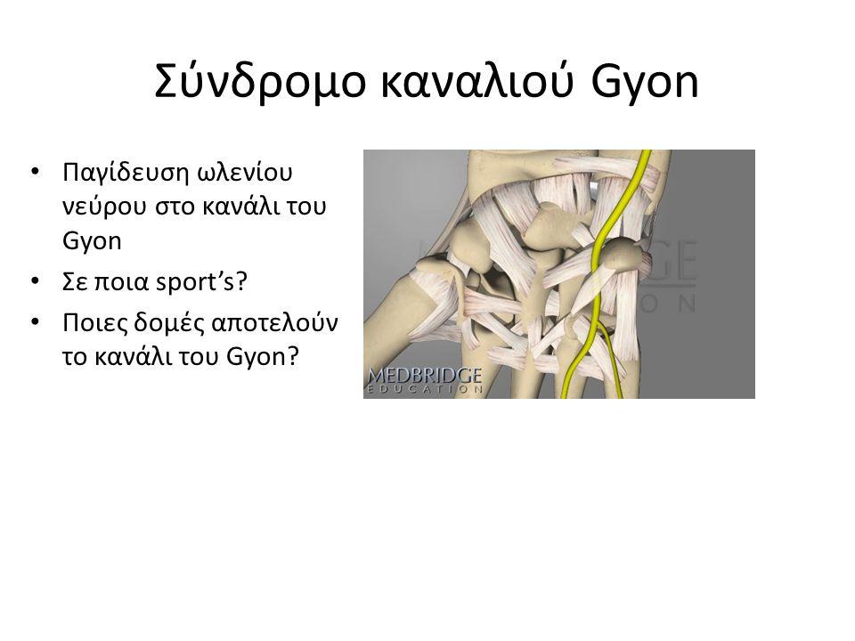 Σύνδρομο καναλιού Gyon Παγίδευση ωλενίου νεύρου στο κανάλι του Gyon Σε ποια sport's.