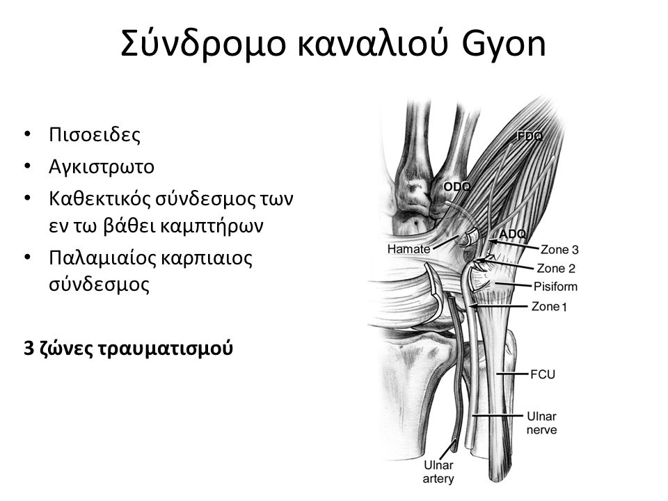 Σύνδρομο καναλιού Gyon Συμπτώματα Μούδιασμα/μυρμίγκιασμ α στη δερμοτομιακή κατανομή του ωλενίου Καυστικός πόνος Αδεξιότητα Αδυναμία στο υποθέναρ (απώλεια λειτουργίας του προσαγωγού του μ.