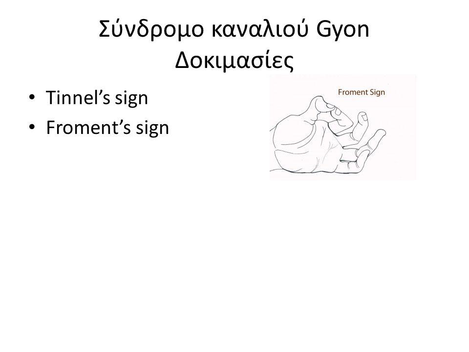 Σύνδρομο καναλιού Gyon Δοκιμασίες Tinnel's sign Froment's sign