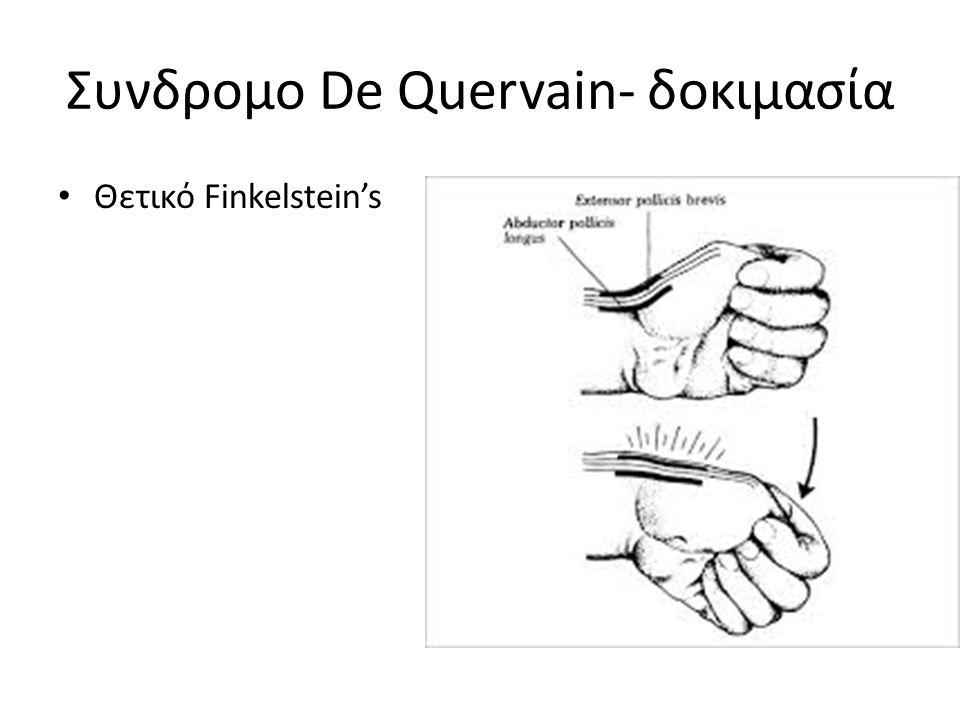 Συνδρομο De Quervain- δοκιμασία Θετικό Finkelstein's