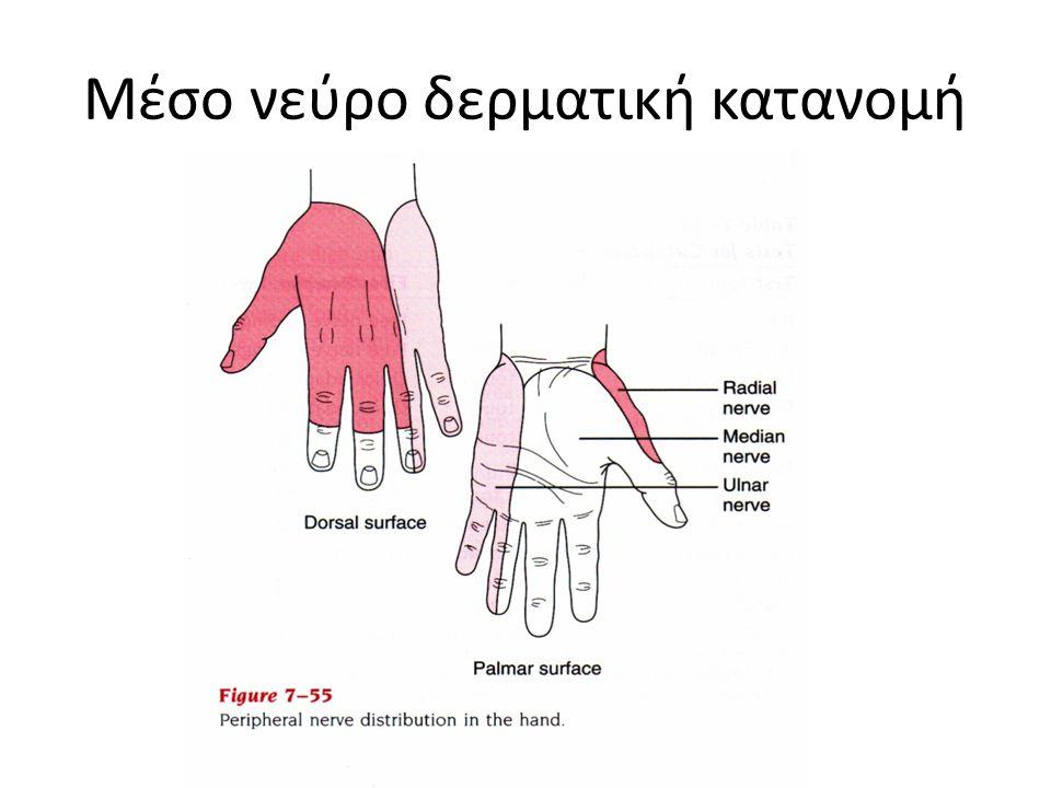 Σύνδρομο καρπιαίου σωλήνα Συμπτώματα Παραισθησία στη δερμοτομιακή περιοχή Πόνος και αδυναμία των μυοτομίων: Βραχύς καμπτηρας βραχύς απαγωγός του μεγάλου δακτύλου, αντιθετικός και δύο ελμινθοειδείς.
