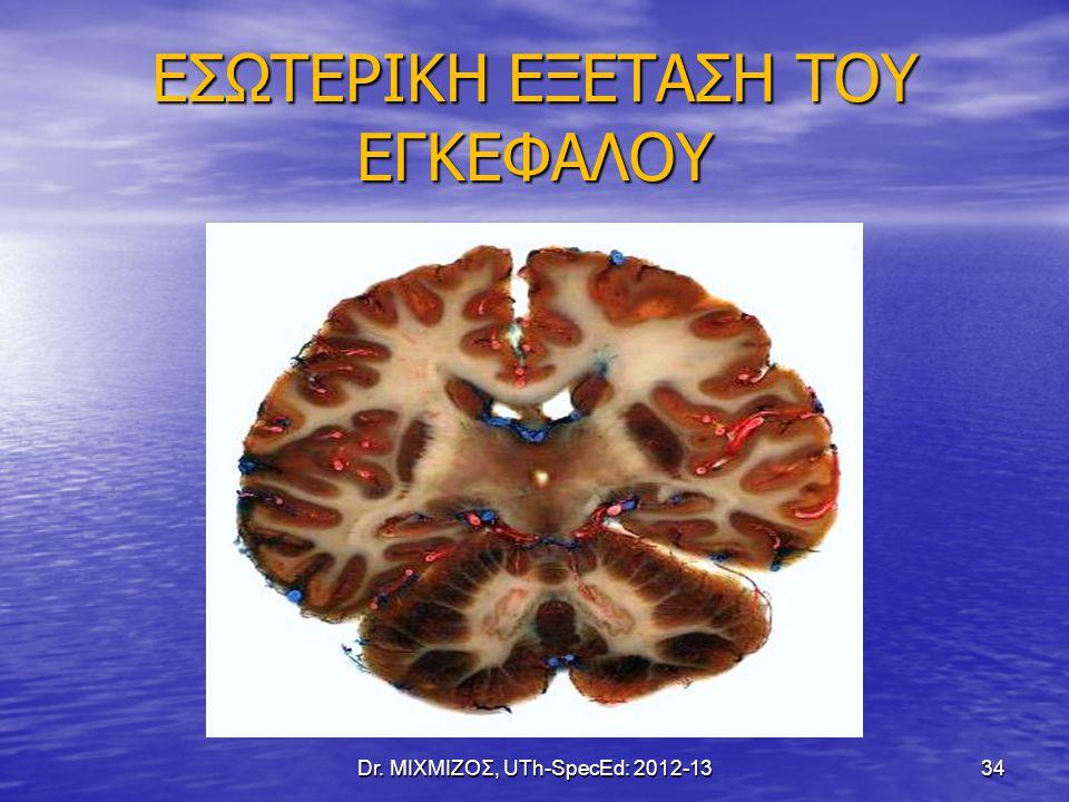 ΕΣΩΤΕΡΙΚΗ ΕΞΕΤΑΣΗ ΤΟΥ ΕΓΚΕΦΑΛΟΥ Dr. ΜΙΧΜΙΖΟΣ, UTh-SpecEd: 2012-13 34