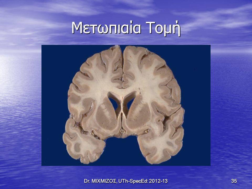 Μετωπιαία Τομή Dr. ΜΙΧΜΙΖΟΣ, UTh-SpecEd: 2012-13 35