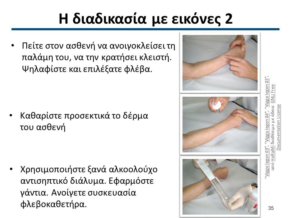 Η διαδικασία με εικόνες 2 Πείτε στον ασθενή να ανοιγοκλείσει τη παλάμη του, να την κρατήσει κλειστή. Ψηλαφίστε και επιλέξατε φλέβα. Καθαρίστε προσεκτι