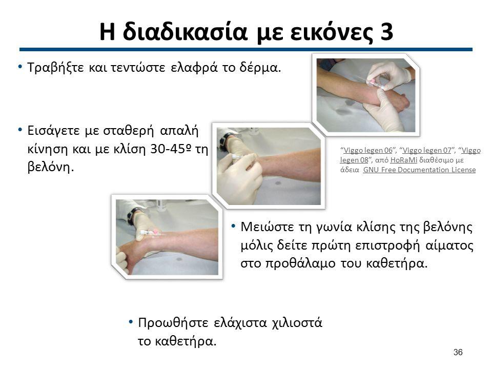 Η διαδικασία με εικόνες 3 Τραβήξτε και τεντώστε ελαφρά το δέρμα. Εισάγετε με σταθερή απαλή κίνηση και με κλίση 30-45º τη βελόνη. Μειώστε τη γωνία κλίσ